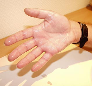 socijalna fobija ili anksioznost, znojan dlan